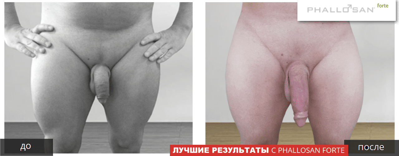 What Are The Penis Enlargement Exercises