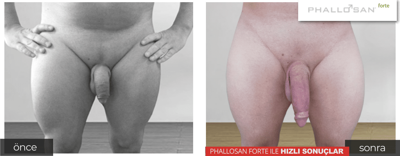 Why Are Jelquing Exercises Or Penis Enlargement Massages So Dangerous